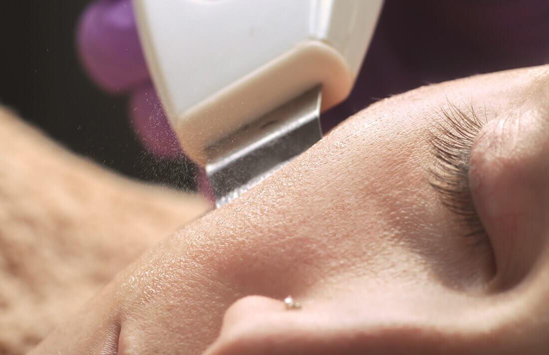 Peeling kawitacyjny - zapiegi pielęgnacyjne dla kobiety